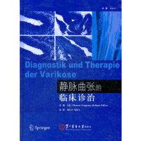 静脉曲张的临床诊治