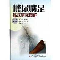 糖尿病足临床研究图解(精) 郎江明//魏爱生