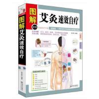 图解艾灸速效自疗 图文版 图书 艾灸手册 艾灸穴位图解 中医养生保健书籍 畅销书