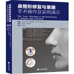 鼻整形修复与重建——手术操作及实例演示