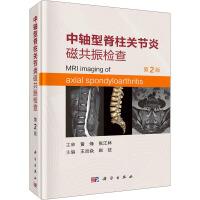 中轴型脊柱关节炎磁共振检查 第2版 科学出版社
