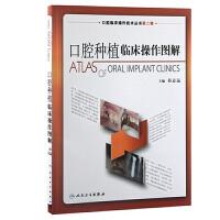 口腔临床操作技术丛书・口腔种植临床操作图解