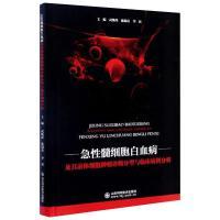 急性髓细胞白血病及其前体细胞肿瘤诊断分型与临床病例分析 山东科学技术出版社