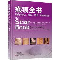 瘢痕全书 瘢痕的形成、缓解、修复、预防和治疗 河南科学技术出版社